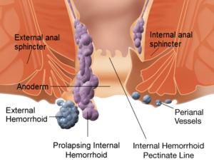 300px-Internal_and_external_hemorrhoids